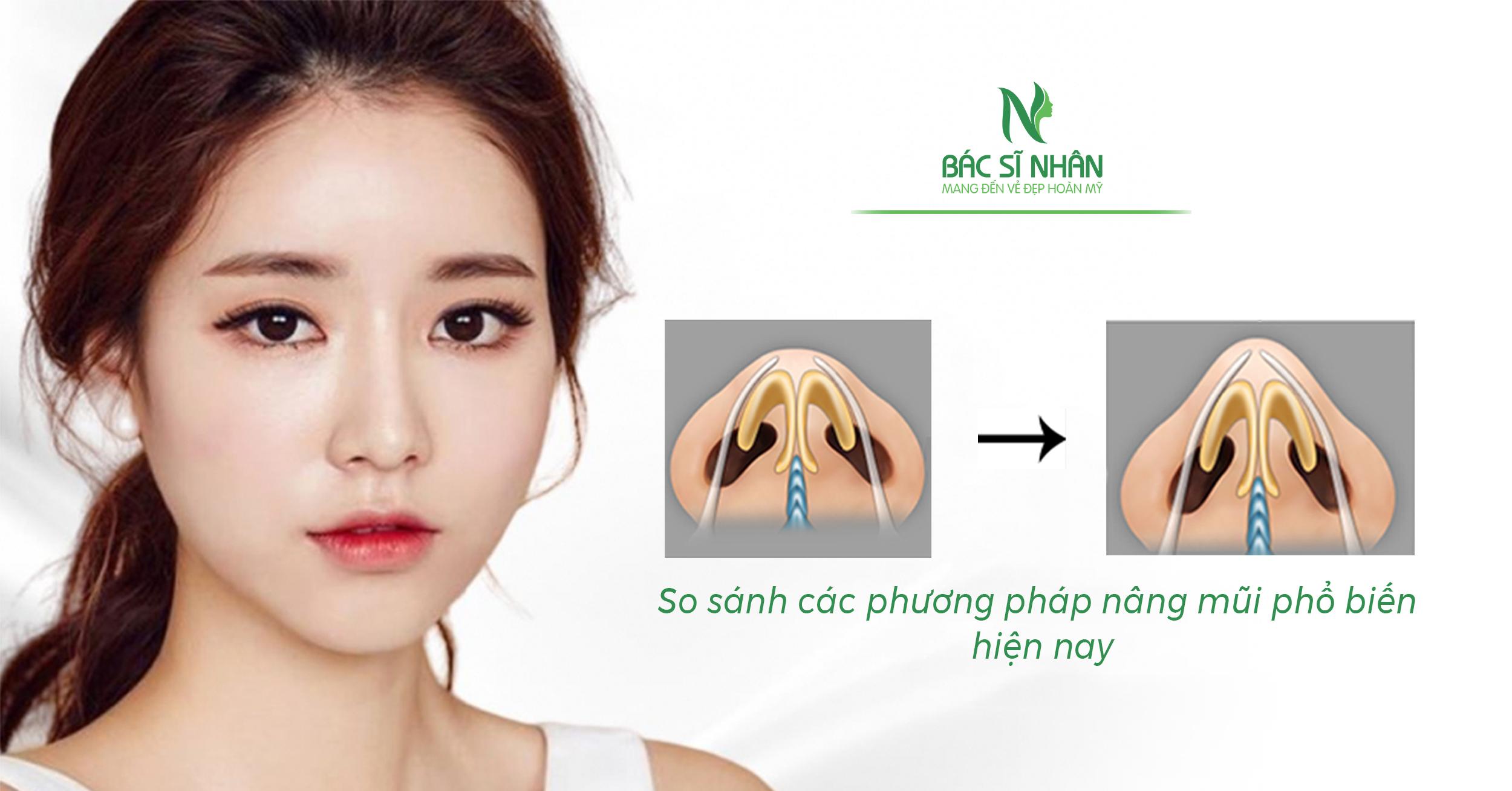 phương pháp nâng mũi